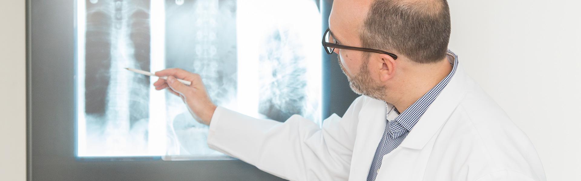 folgen erkrankung bei osteoporose